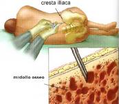 Biopsia del Midollo Osseo