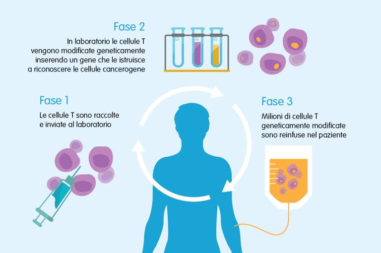 La modifica delle cellule con il trattamento Car-T